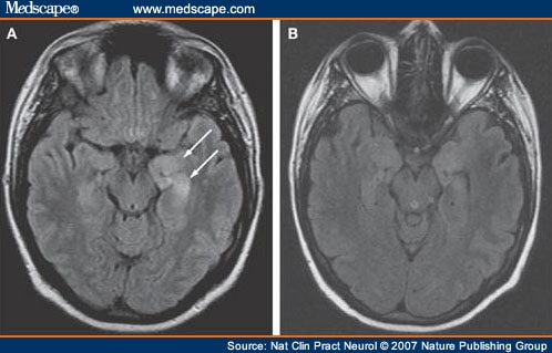 A Patient With Encephalitis Associated With Nmda Receptor Antibodies