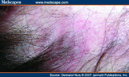 Primary Cicatricial Alopecia Clinical Features And Management