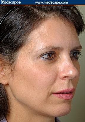 Dermal Fillers in Cheek Rejuvenation