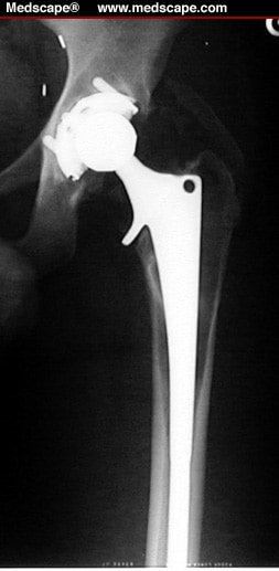 Periprosthetic Fractures of the Femur