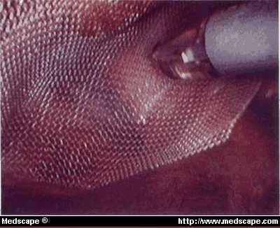 Goretex mesh in abdominal wall