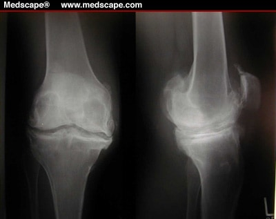 Surgical Challenges in Revision Total Knee Replacement