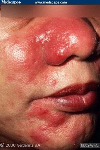 Acne And Rosacea Differential Diagnosis And Treatment In