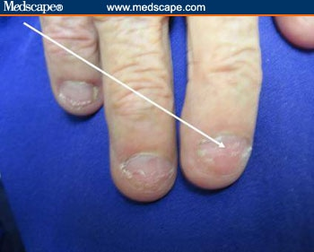 Examining the Fingernails When Evaluating Presenting