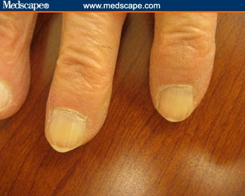 Examining the fingernails when evaluating presenting symptoms in example of brown gray nails sciox Image collections