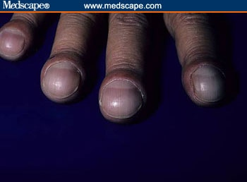 Example Of Clubbed Fingernails