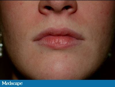 A 25-Year-Old Woman Seeking Subtle Lip Enhancement