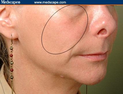 Facial Contouring and Volumization
