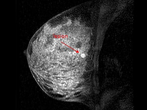 Dynamic Mri Attains High Specificity For Breast Cancer