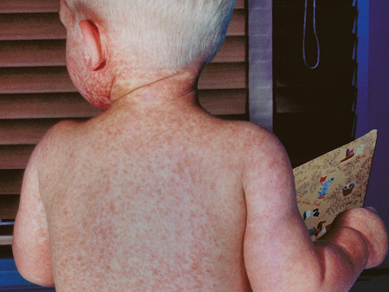 The Measles Outbreak: Guidance for Clinicians