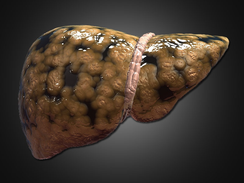 Top Highlights in NAFLD/NASH: The Liver Meeting 2014