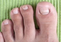 Ingrown Toenail Removal: Overview, Indications, Contraindications