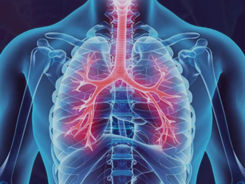 Clinical Advances In Chronic Respiratory Diseases COPD And