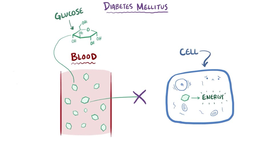 diabetes mellitus tipo 1 medscape