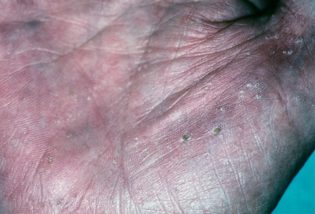 Poisoning Clues on the Skin: 10 Cases