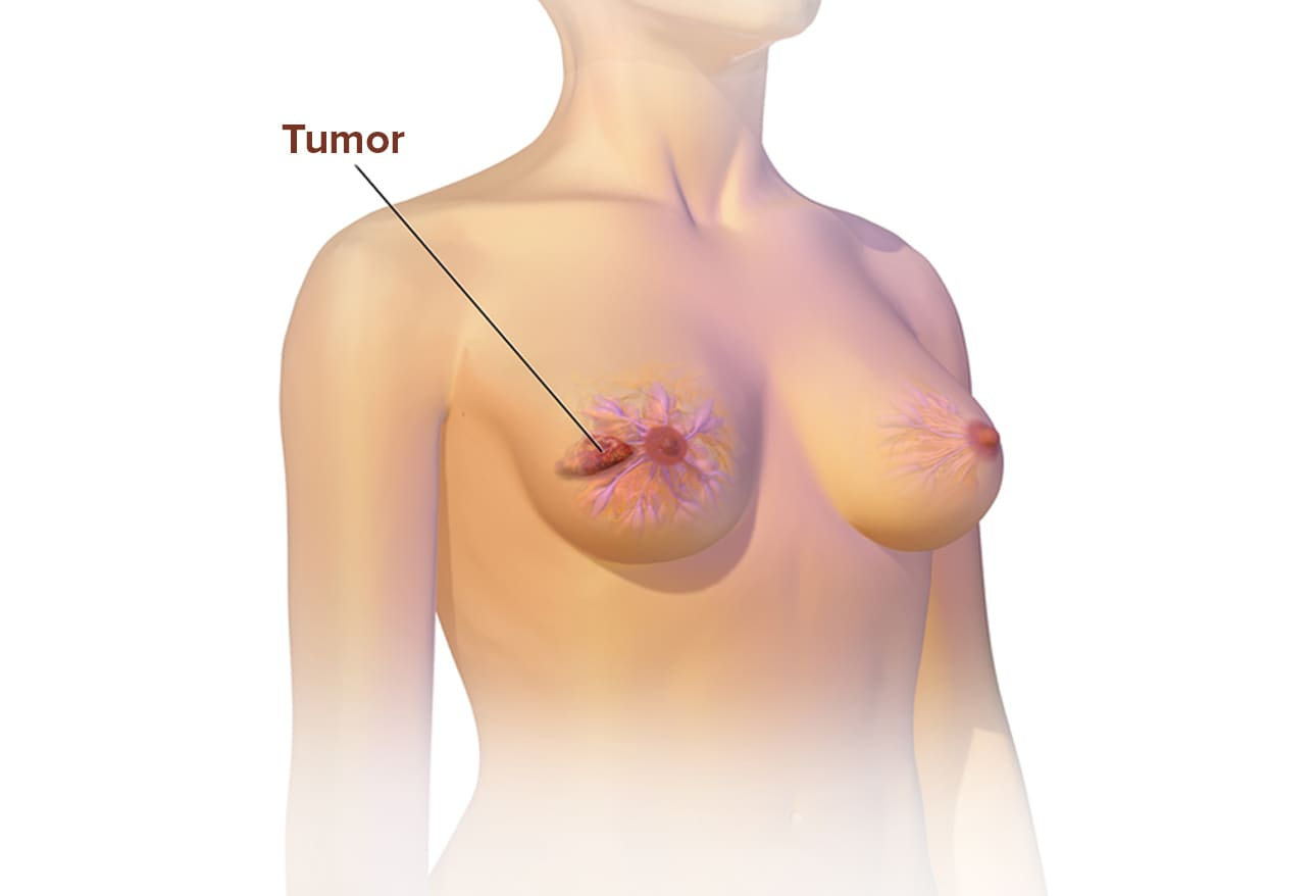 cme breast cancer