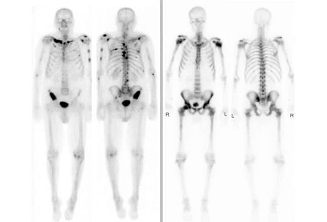 cáncer de próstata superscan