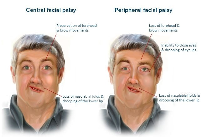 what is the difference between bell's palsy and a stroke