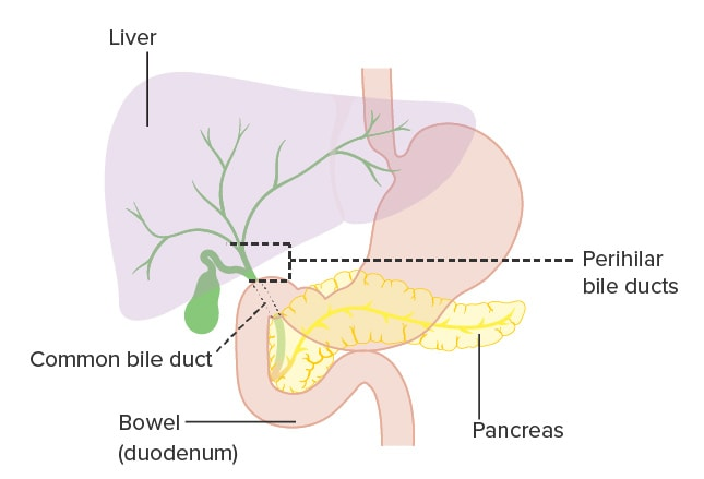 Gallbladder Bile Duct And Ampullary Cancer Shaking The Biliary Tree