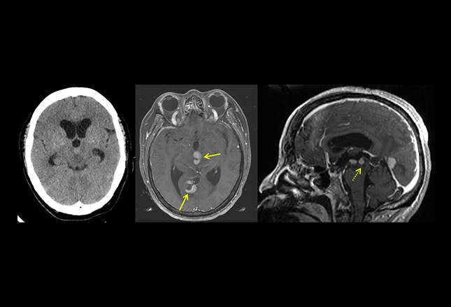 brain lesions 9 cases to test your management skills