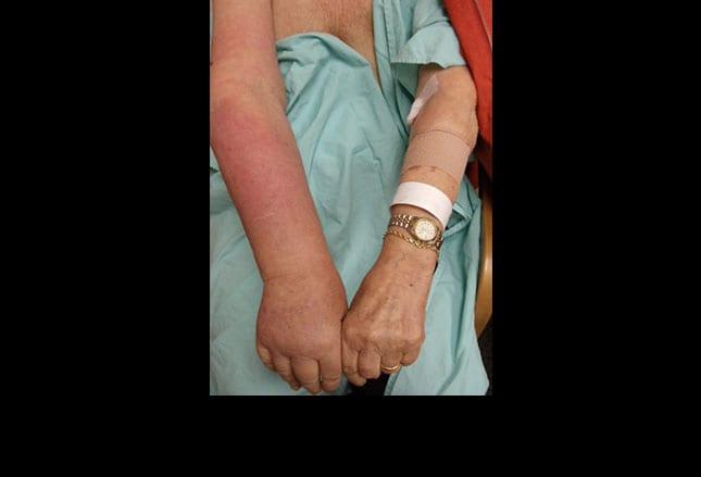 pics slideshow breast cancer surgery say