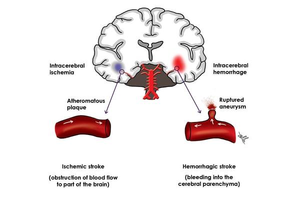 cerebrovascular accident a stroke of misfortune