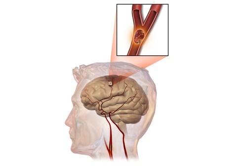 Cerebrovascular Accident: A Stroke of Misfortune