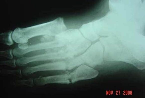 Red, Hot, and Swollen Foot in Diabetes: Charcot or No?
