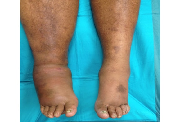 Red Hot And Swollen Foot In Diabetes Charcot Or No