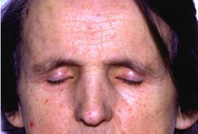 Cutaneous Signs of 10 Unusual Systemic Diseases