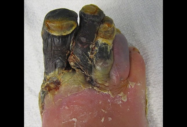 19 Common Foot Disorders