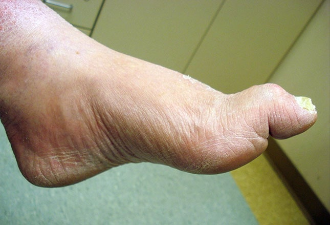 men with long toes