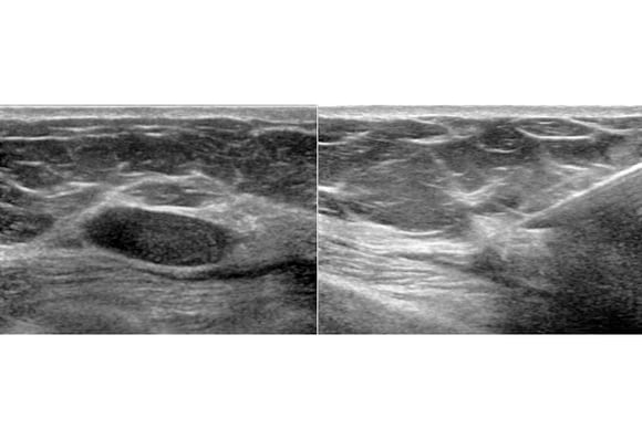 Complex Breast Masses: Is There an Echo in Here?