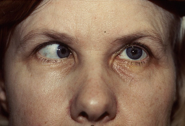Diagnostic Errors in Patients With Eye Symptoms