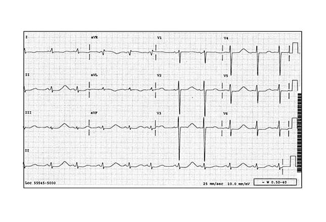 7 Can't-Miss Life-Threatening ECG Findings