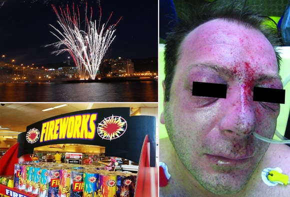 Fireworks Injuries: Ooh, Aah   Ouch!