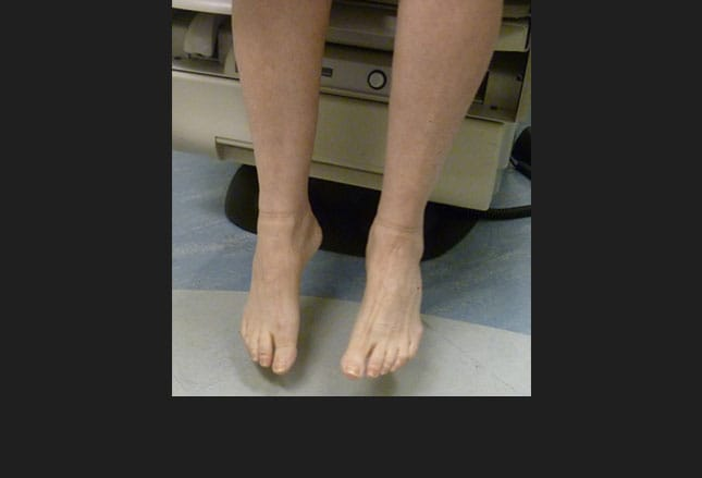 Foot Drop A Posterior Tibial Tendon Transfer Approach