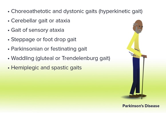 Gait Disorders: When the Patient Can't Walk the Walk