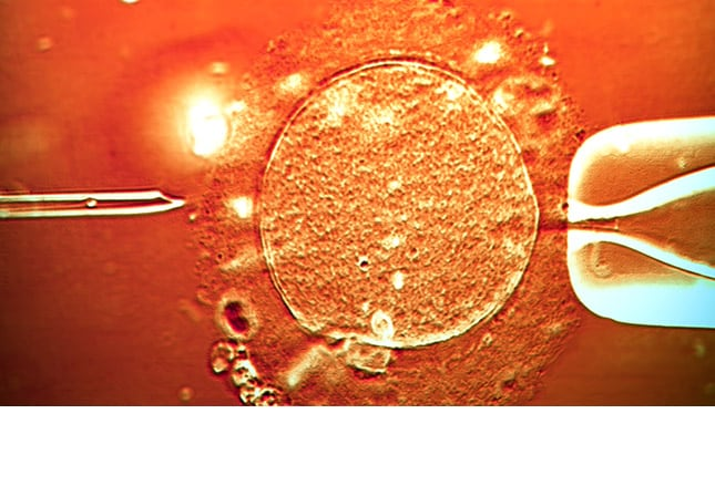 Infertility: Causes, Common Presentations, and Treatments