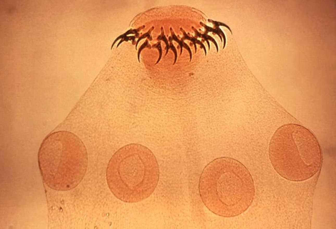 enterobius vermicularis medscape parazita fertőzések jelei emberben