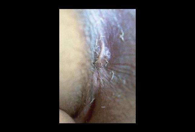 Vid she swallowed it anus intestine
