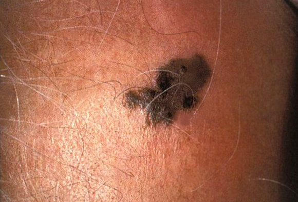 Mole or Melanoma? Test Yourself With These Suspicious Lesions