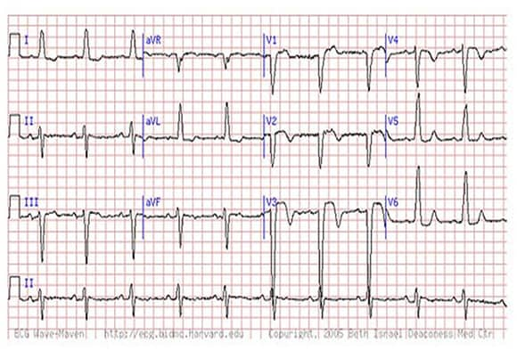 Are You Missing Subtle Mi Clues On Ecgs Test Your Skills