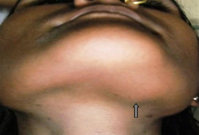 neck adults Cysts