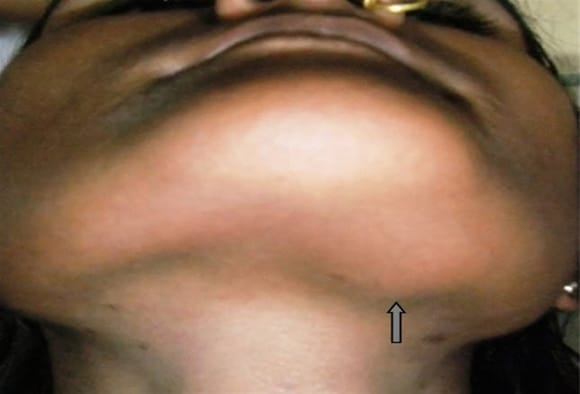 10 Patients With Neck Masses Identifying Malignant Versus Benign