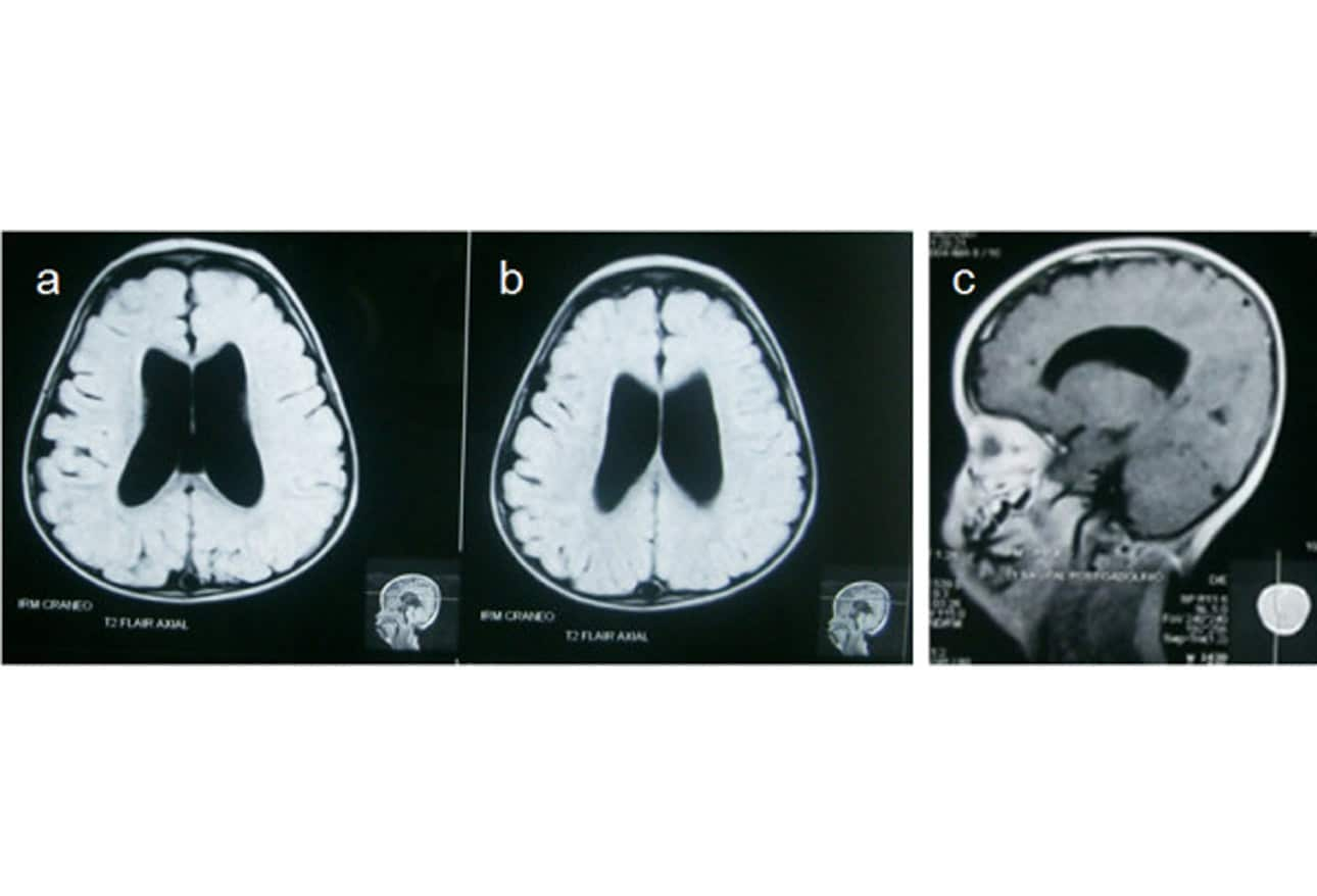 neonatal and infant brain imaging evaluation