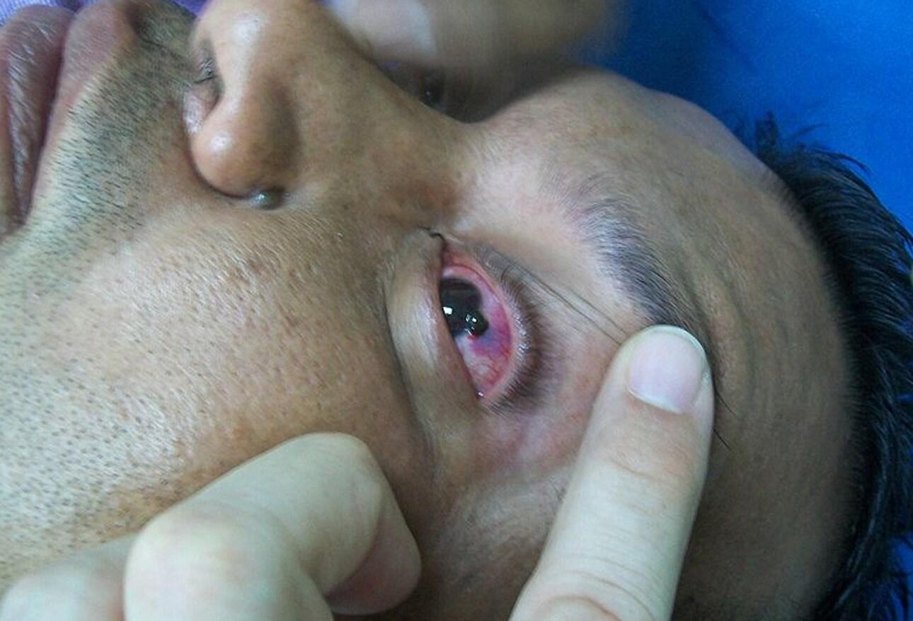Ocular Trauma: 8 Potentially Devastating Eye Injuries