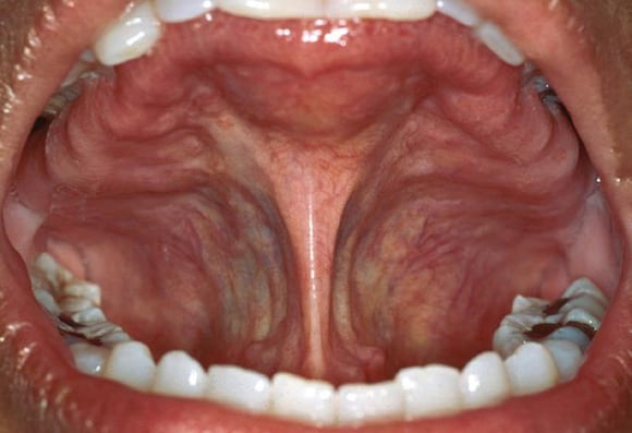 Clues In The Oral Cavity Are You Missing The Diagnosis
