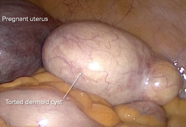 Ovarian Cysts: Functional or Neoplastic, Benign or Malignant?