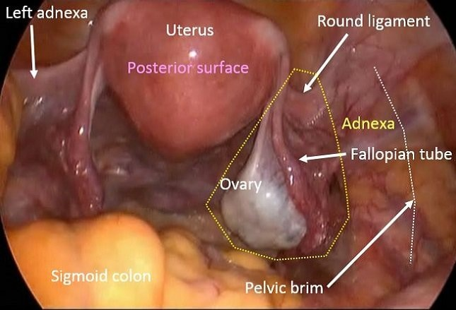 Ovarian Cysts Functional Or Neoplastic Benign Malignant